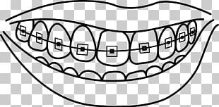 Dental Braces Dentistry Human Tooth Drawing PNG