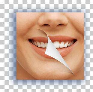 Tooth Whitening Cosmetic Dentistry Oral Hygiene PNG