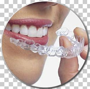 Clear Aligners Dental Braces Orthodontics Dentistry Therapy PNG