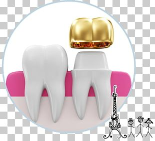 Tooth Crown Dentistry Prosthodontics Dental Implant PNG