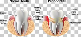 Periodontal Disease Gums Gingivitis Periodontology Dentistry PNG