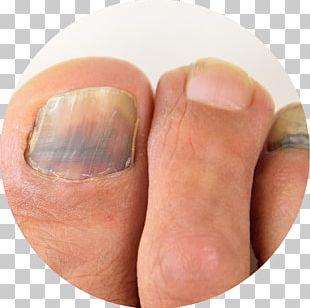 Nail Toe Foot Subungual Hematoma Hand PNG