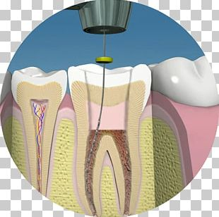 Endodontic Therapy Dentistry Human Tooth Pulp PNG
