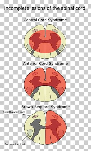 Spinal Cord Injury Anterior Spinal Artery Syndrome Central Cord Syndrome PNG
