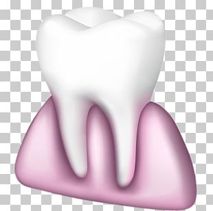 Tooth Pathology Chewing Gum Gums PNG
