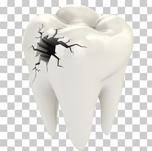 Cracked Tooth Syndrome Dentistry Dental Restoration Human Tooth PNG