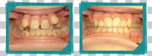 Cosmetic Dentistry Tooth Jaw Clear Aligners PNG