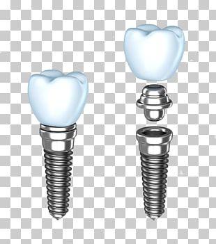 Dental Implant Dentistry Dentures Human Tooth PNG