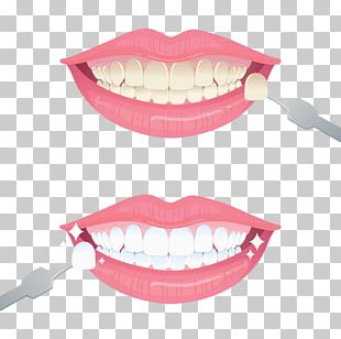 Tooth Whitening Euclidean PNG