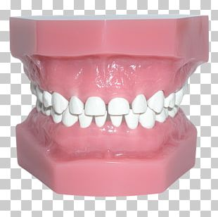 Human Tooth Pediatric Crowns Occlusion PNG