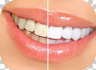 Tooth Whitening Dentistry Human Tooth PNG