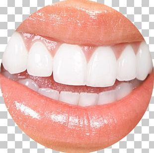 Veneer Cosmetic Dentistry Tooth Whitening PNG