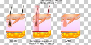 Laser Hair Removal Fotoepilazione Intense Pulsed Light PNG