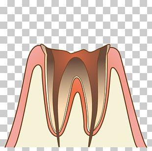 歯科 Dentist Periodontal Disease Tooth Decay PNG