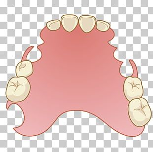 Dentistry Dentures Removable Partial Denture Mouth PNG