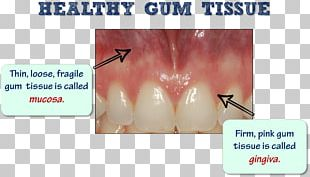 Tooth Periodontal Disease Gums Edentulism Dental Plaque PNG