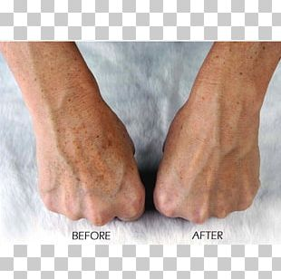 Trophy Skin MicrodermMD Home Microdermabrasion Machine Finger Exfoliation PNG