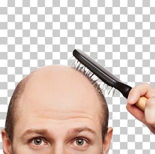 Hair Loss Health Hair Care Scalp PNG