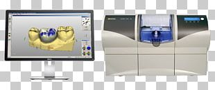CAD/CAM Dentistry Crown Dental Restoration Inlays And Onlays PNG