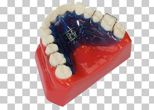 Tooth Clear Aligners Dental Braces Retainer Dental Arch PNG