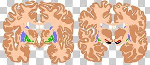 Brain Basal Ganglia Agy Substantia Nigra Ganglion PNG