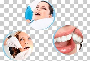 Dentistry Tooth Whitening Dental Implant Endodontic Therapy PNG